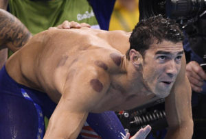 https://www.thrillist.com/news/nation/rio-olympics-2016-michael-phelps-olympians-cupping-spots
